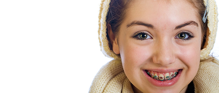 Things you ahold know before getting braces
